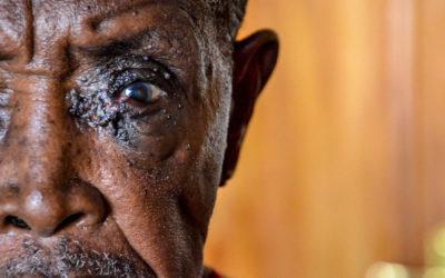 4. Eye Camp – Dezember 2011 – Dar es Salaam, Tansania